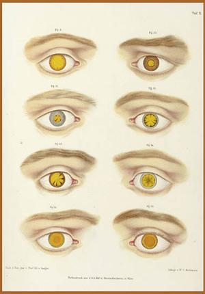 Freaky_eyes_2
